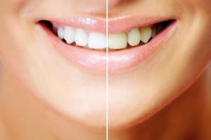Beispiel für Bleaching oder Zahnaufhellung am Lachen einer Frau