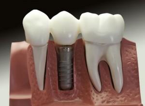 Schaubild eines Implantats